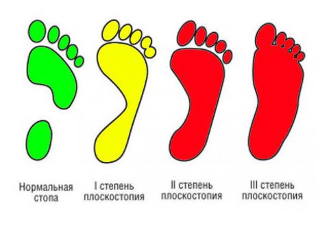 """Определение степени плоскостопия у ребенка в детском медицинском центре """"Забота"""", г. Рязань"""